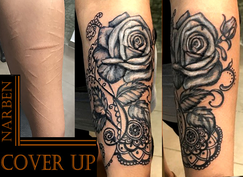 Cover up Mira  Narben GR.jpg